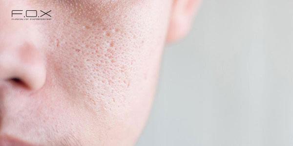 Tác dụng của BHA là làm sạch sâu và thu nhỏ lỗ chân lông