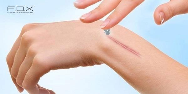 Ưu điểm và hạn chế của thuốc trị sẹo Dermatix